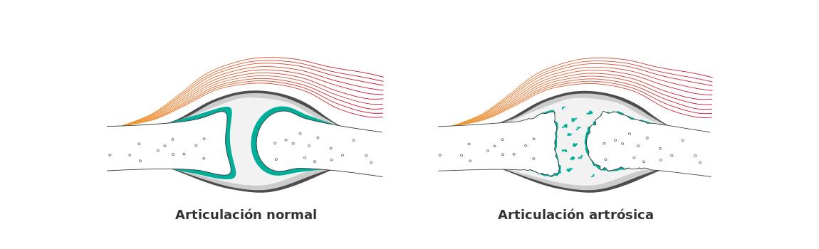 artrosis-slide_inicio